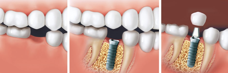 Composites dentaires Tunisie - Implant dentaire Tunisie