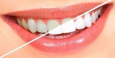 blanchiment-dents-tunisie