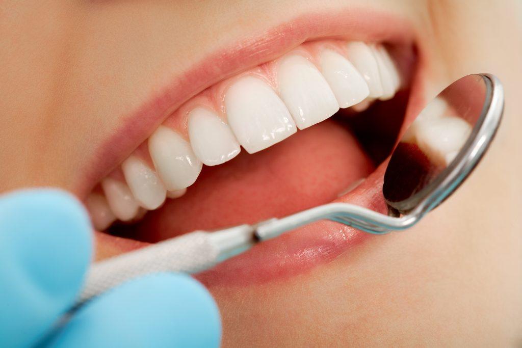 prix soins dentaires - implant dentaire tunisie pas cher