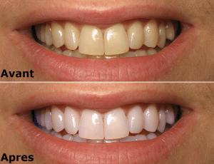 Blanchiments des dents Tunisie - Implant dentaire tunisie