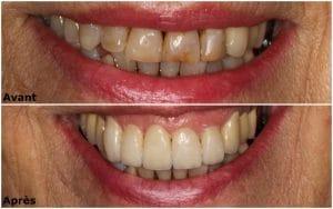 Composites dentaires Tunisie - Implant dentaire Tunisie