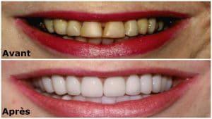 Facettes dentaires Tunisie - Implant dentaire Tunisie
