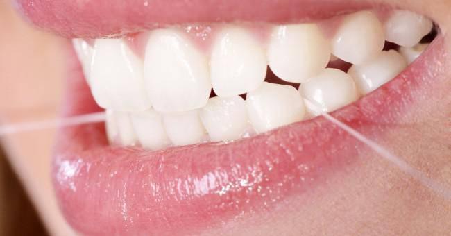 la-plaque-dentaire