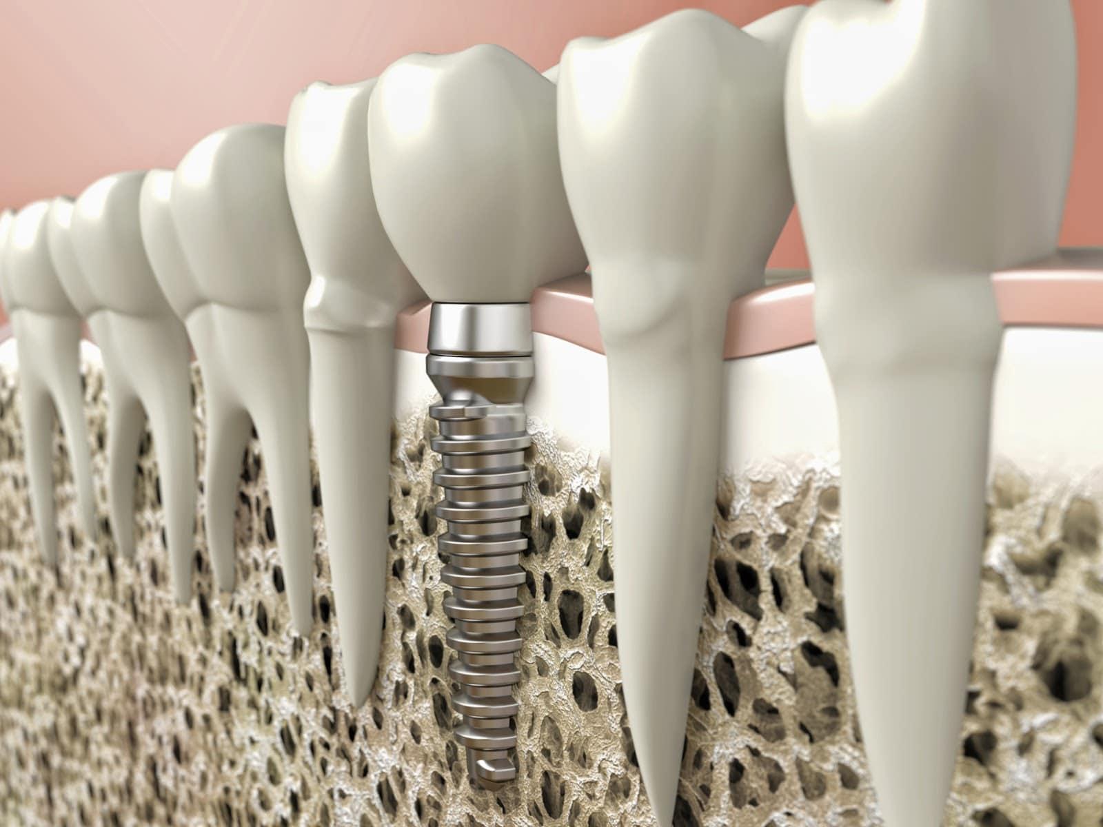 Implants dentaires : prenez-vous des médicaments ?