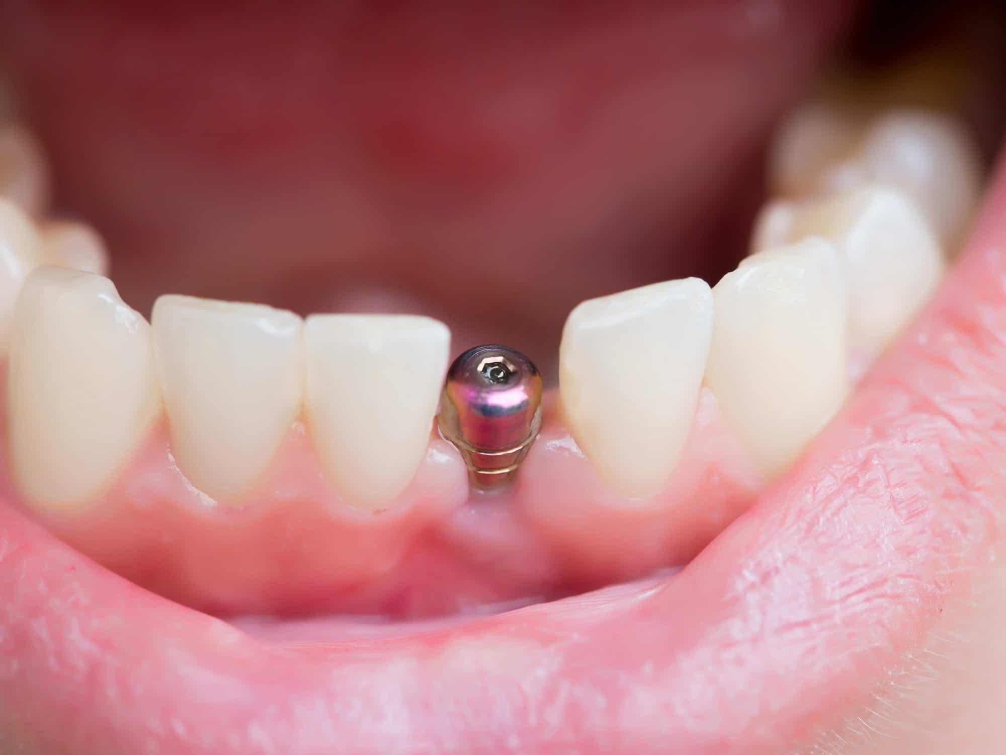 Suites opératoires aux implants dentaires