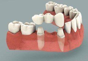 avantage-prothese-dentaire