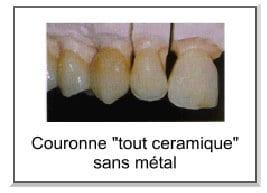 couronne-ceramique-sans-metal