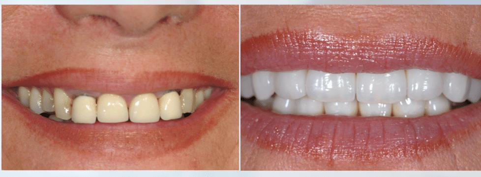 facette-dentaire-ceramique
