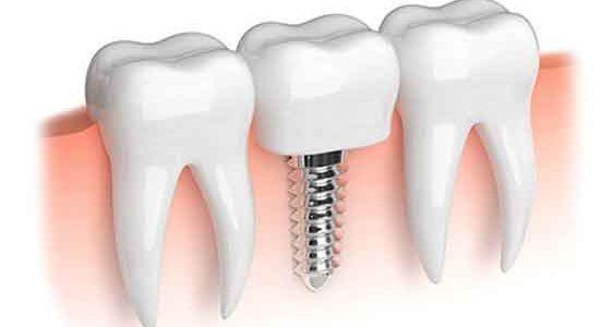 pose-implant-dentaire-tunisie