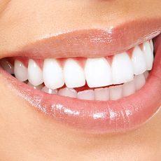 Blanchiment des Dents, Ce qu'il faut Savoir