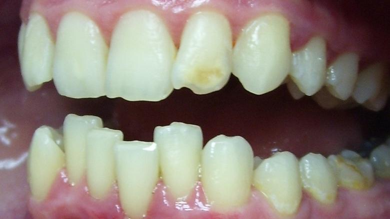 hypoplasie-dentaire