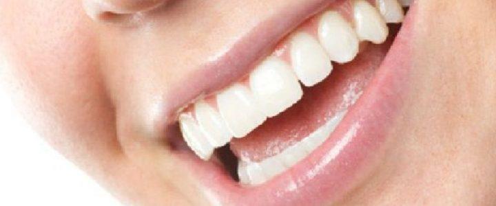 Hypoplasie de l'émail dentaire : quelles sont les solutions ?