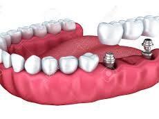 Foire aux questions à propos des implants dentaires