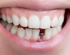 L'importance d'une planification de traitement complète avant la pose d'un implant dentaire