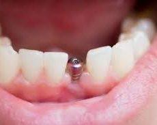 L'importance d'une dentition complète