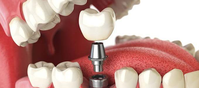Les Implants dentaires offrent une alternative aux dents ou dentiers manquants