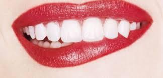 Blanchissez vos dents pour un sourire de mariée le jour de votre mariage