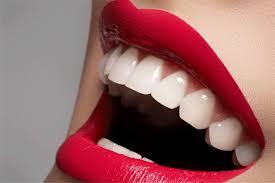 eclairissement-dentaire