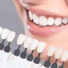 Quelles sont les facettes dentaires
