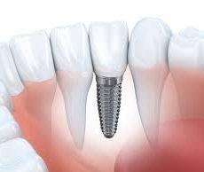 Procédure d'implants dentaires, types, problèmes