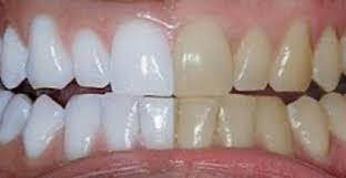 blanchiment-dentaire-tunisie