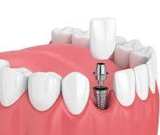 Quels sont les avantages des implants dentaires ?