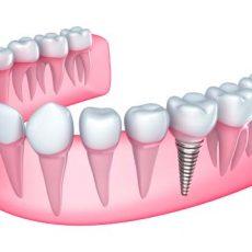 Implants dentaires: comment fonctionnent-ils et en quoi sont-ils faits?