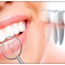 Question et réponse sur les implants dentaires