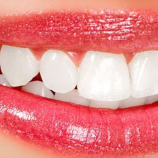 Blanchiment des dents: quels types de traitements existent?
