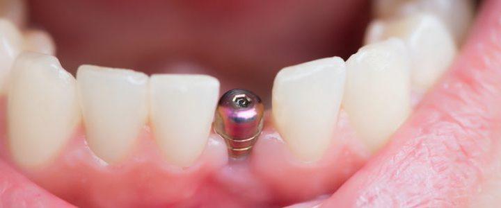 Traitements avancés en implantologie dentaire