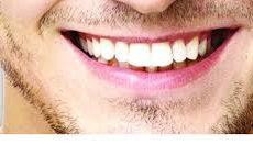Prothèses dentaires : dernier défi un sourire naturel