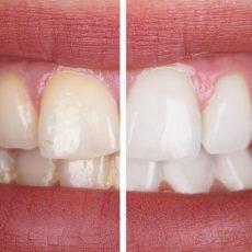 Blanchiment des dents : tout ce que vous devez savoir