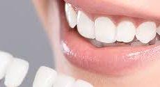Améliorez l'esthétique de votre sourire avec des facettes dentaires !