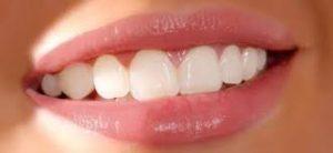 facette-dentaire-tunisie