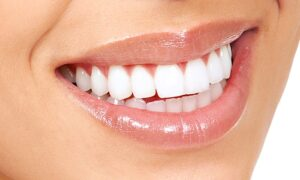 blanchiment-des-dents