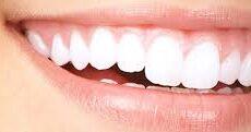 Hollywood Smile Dental