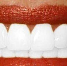 Des dents plus blanches grâce au régime blanc
