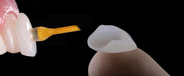 facette-dentaire-turquie