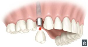 implant-dentaire-hangrie