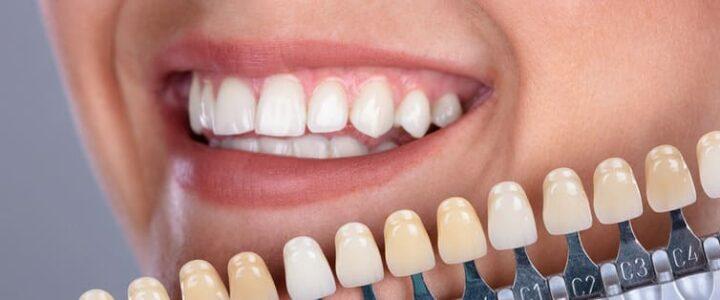 prix-facette-dentaire-hongrie