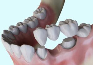 bridge-dentaire