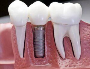 implant-dentaire-tunisie