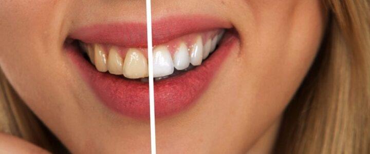 Les questions sur le blanchiment des dents que vous devriez vous poser