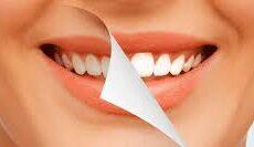 Qu'est-ce que le blanchiments des dents ?