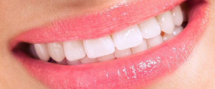 Refaire ses dents Tunisie