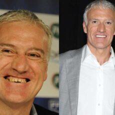 Facettes dentaires pour Didier Deschamps : Des nouvelles dents pour Didier