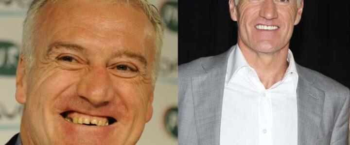 Didier-Deschamps facettes dentaires