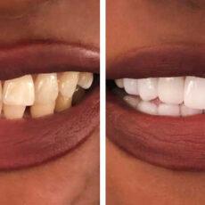 Les facettes dentaires eMax