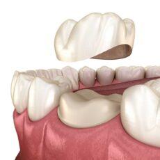 Tout en savoir à propos les couronnes dentaires