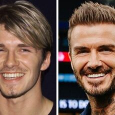 David Beckham et la chirurgie dentaire